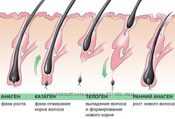 Лечение волос и проблемной кожи головы - гомео мезотерапия. Киев.