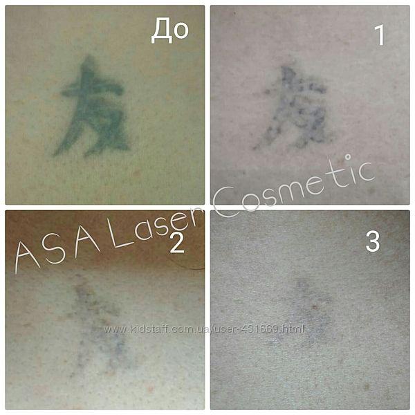 Удаление татуировок лазером БЕЗ рубцов и шрамов. Позняки