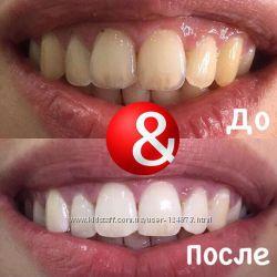 Безопасное отбеливание зубов в студии