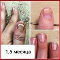 Средство от грибка ногтей и кожи, более 100 отзывов