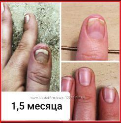 Средство от грибка ногтей и кожи, более 300 отзывов