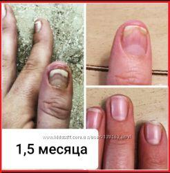 Средство от грибка ногтей, гарантия, ОТЗЫВЫ