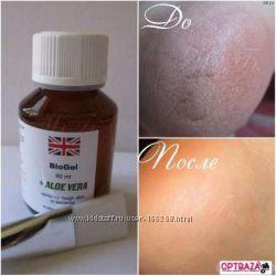 Фруктовые кислоты для удаления огрубевшей кожи