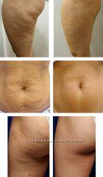 Революционное похудение, снижение веса.