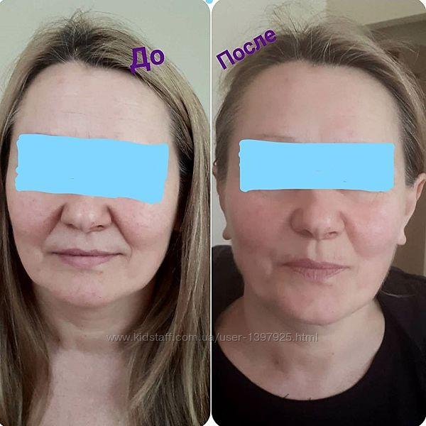 Комплексный уход за кожей лица и тела, подбор уходовой и лечебной косметики